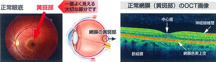 正常眼底と正常網膜のOCT画像 正常眼底と正常網膜(黄斑部)のOCT画像 網膜(黄斑部)疾患のO