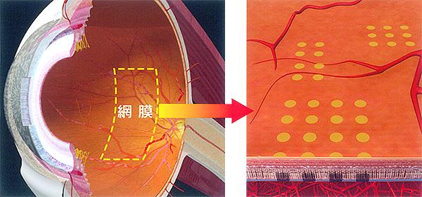 眼球構造イラスト