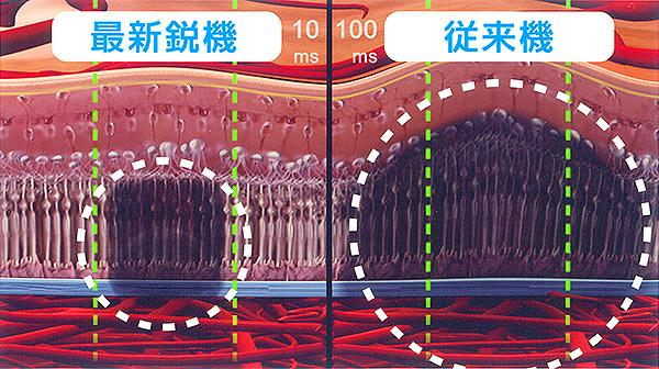 網膜へのレーザー照射後の断面イメージ